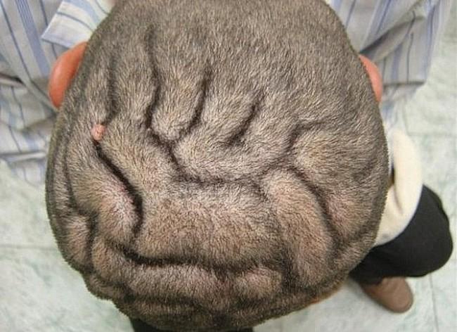 Пахидермия головы